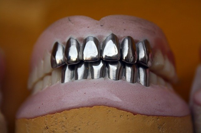kovové zuby